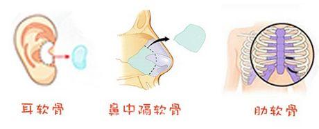 肋软骨鼻综合