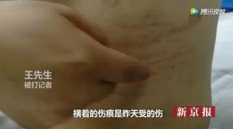 """被打记者身上的伤痕。图/""""我们视频""""截图"""