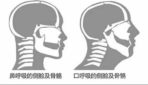 口腔姿势就是一个恶性循环: 你越口呼吸,脸越窄,鼻咽越小,用鼻子呼吸