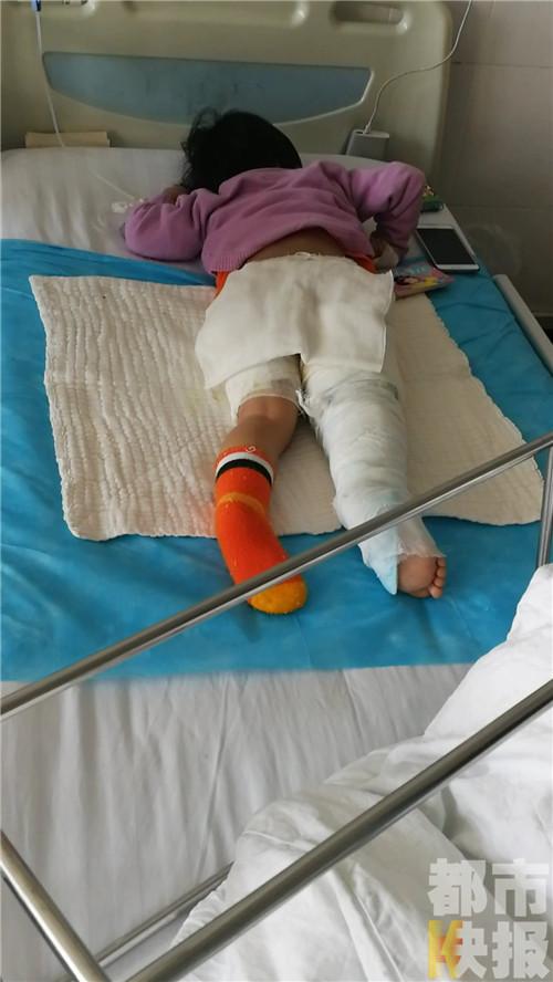 女童被开水烫在屁股上和腿上,烧伤面积是15%,烫伤深度是重二度烫伤。