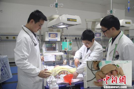 近日,江西省儿童医院为一名刚出生两天的16斤巨婴完成了9斤骶尾部巨大崎胎瘤切除手术。院方供图