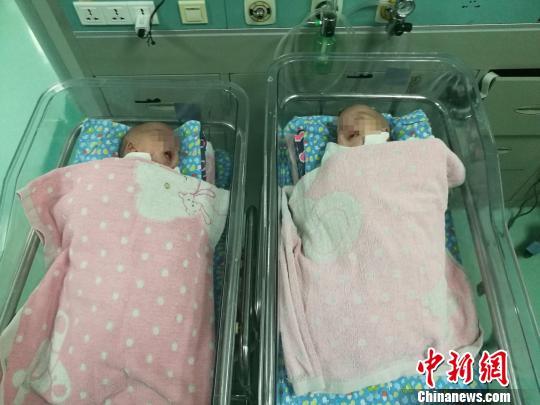 广西一对腹部连体男婴出生41天后成功分离(图)