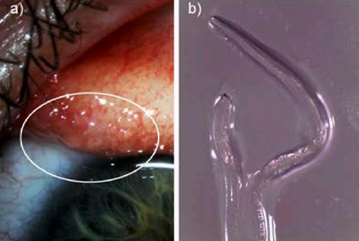 一女子骑马后眼睛里被发现感染有14条寄生虫如果可以这样爱续