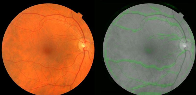 谷歌AI算法新突破:看看眼睛就知道你会不会得心脏病