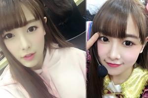 SNH48唐安琪意外烧伤
