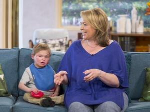 英13岁男孩患罕见病外形似3岁