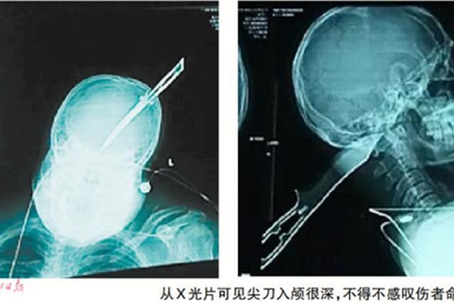 男子被凶徒尖刀插后脑8厘米 头顶着刀自驾摩托报警