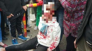 男子与人冲突持刀当街伤人