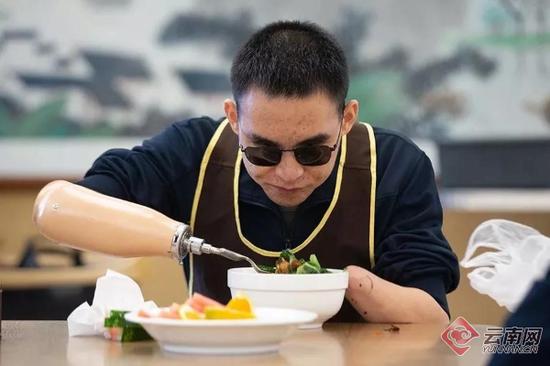 2019年10月24日,重庆西南医院康复楼,杜富国正在用辅助具吃饭。李凯祥摄
