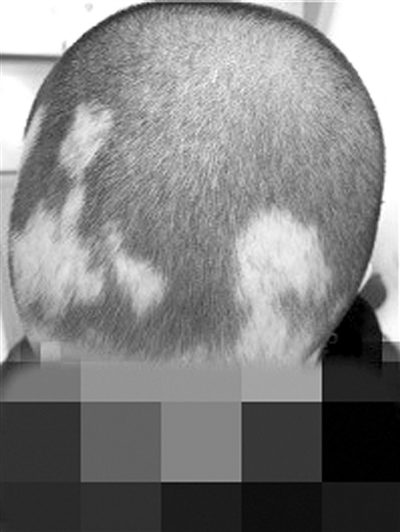 杭州一软件工程师遭遇鬼剃头 理发师都被惊到(图)