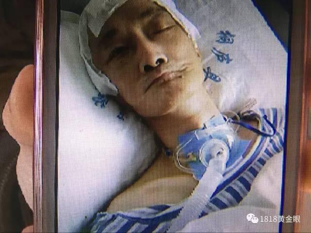 杭州打工男子骑车遇路面有个坑 不幸摔成植物人(组图)