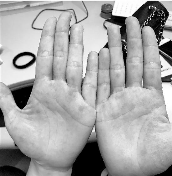杭州37岁女子高烧40℃双手生满疹子 经查是手足口病