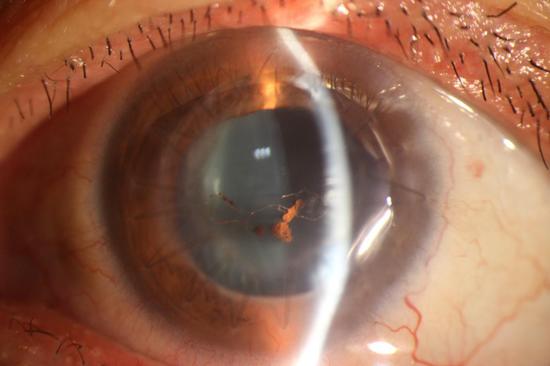 左角膜移植术后1周
