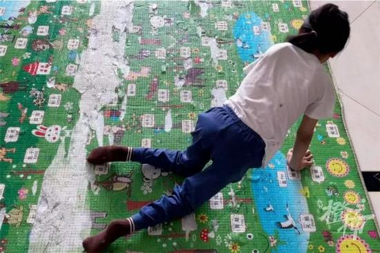 浙江一5岁女孩因跳舞受伤 鉴定为脊髓损伤至截瘫