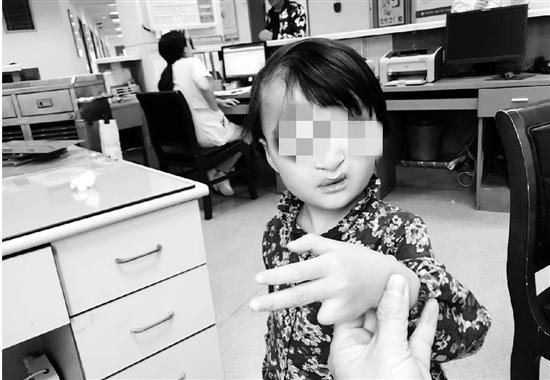 5岁女孩先天面裂吓哭小朋友 杭州医院免费为她换脸