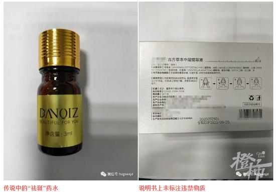 老板用牙签蘸药水 杭州一女子花2万多祛斑惨遭毁容