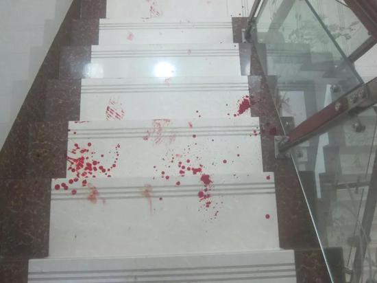 ▍楼梯上的血迹