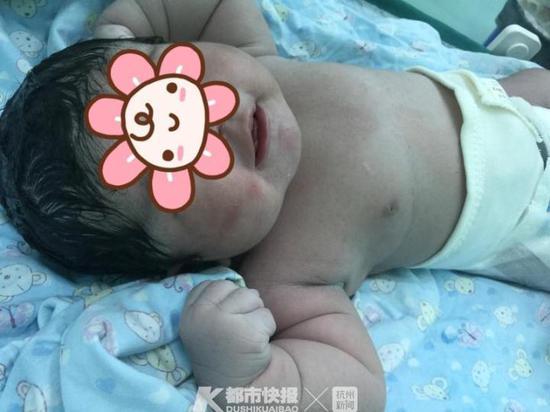 宁波一位宝妈产下11斤巨婴 医生却说这不是好事