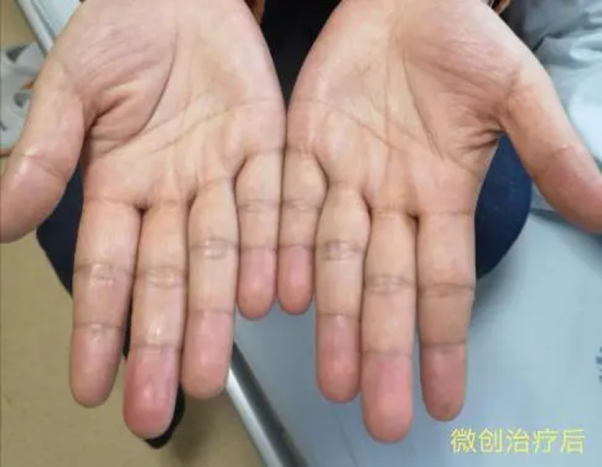 杭州一女士患手汗症20多年 手机指纹解锁都解不开