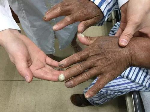 图为患者双手。浙江医院供图