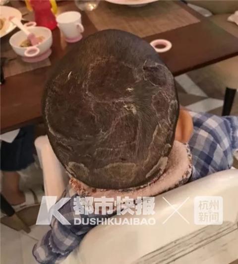 头部取皮植皮