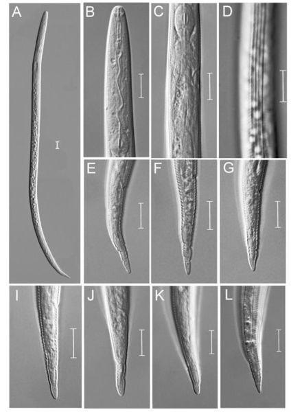 图为根结线虫属(Meloidogyne sp.)新种 宁波海关供图