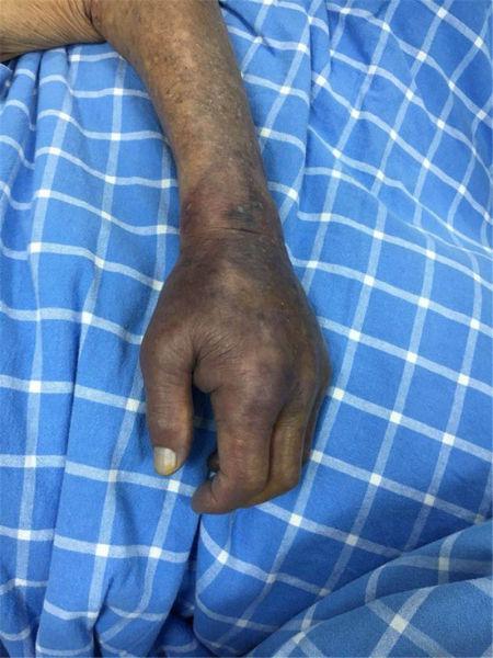 宁波1老人手抓牡蛎感染海中无声杀手 心脏骤停险丧命