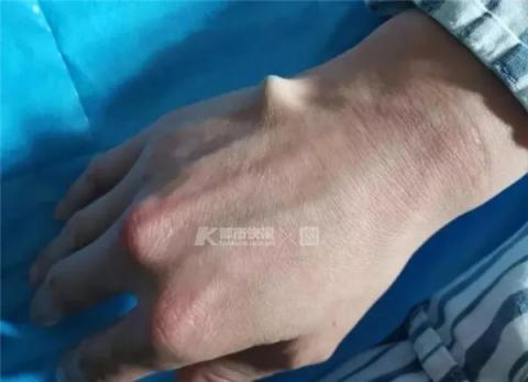 萧山中医院供图