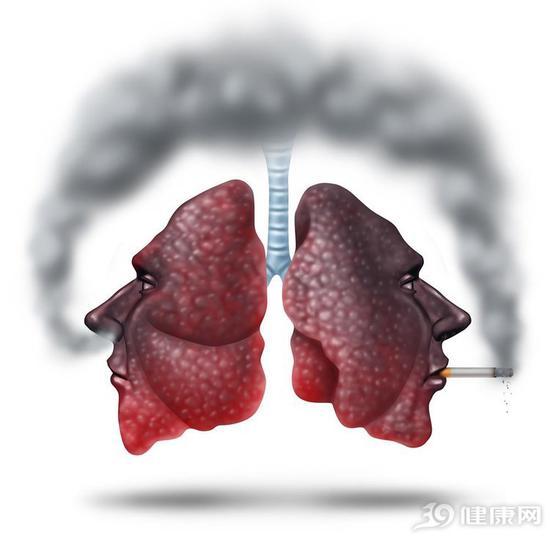 老烟枪出现这些症状,说明肺部有毛病