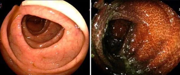 肠镜下,正常的肠道(左)和结肠黑变病肠道对比