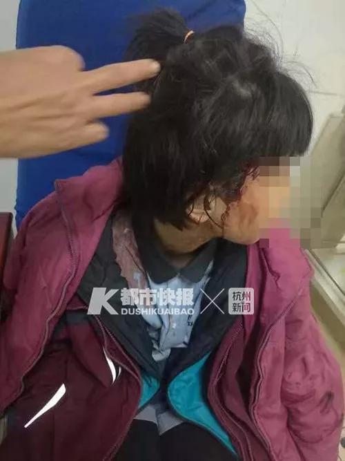 路边大狗迎面扑来 金华9岁女孩头皮被撕开缝了16针