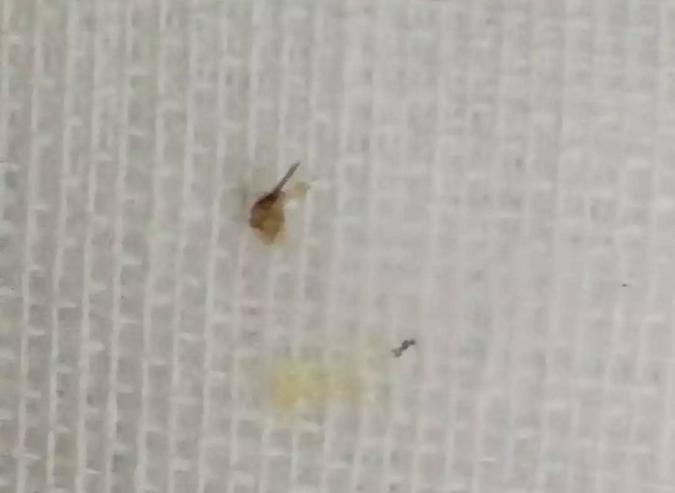 从小李喉部取出的蜜蜂毒针