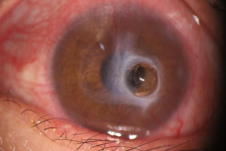 术前左眼角膜穿孔