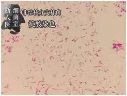 培养后纯菌抗酸染色