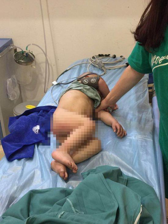 孩子正在医院接受治疗