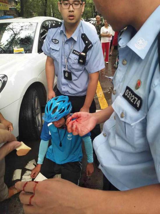 这时,民警才发现自己手上鲜血直流。原来,他的手在夺剪刀时被划破了。