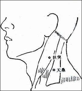 方法:使自身头部向前偏斜45度,拇指旋即向内后方按压约0.5 分钟。