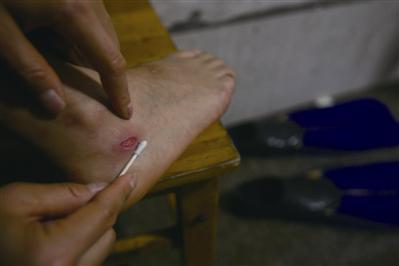 表演时要穿脚蹼,脚踝容易被磨破。
