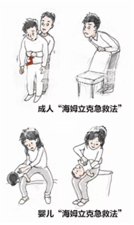 宁波有女童吃糖被卡 家长可用海姆立克法解决问题