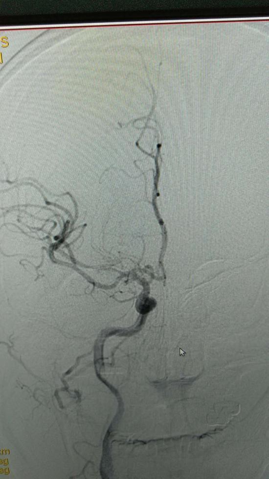 图为:血栓造成了右侧大脑中动脉闭塞(影像图)台州市中心医院供图