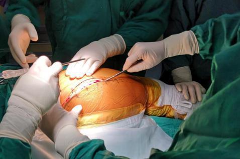 图为:患者正接受手术治疗。 叶倦 摄