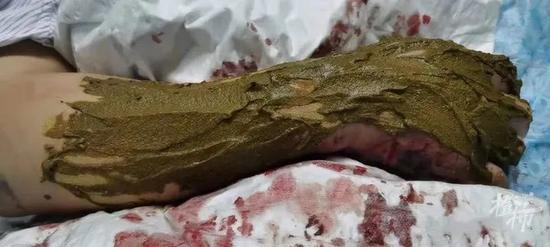 浙江一63岁大伯抓毒蛇泡药酒 反被蛇咬一口住进医院
