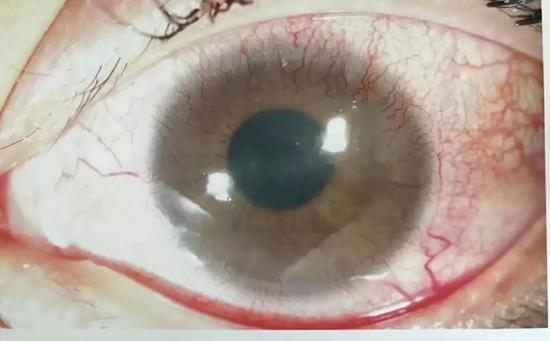(正常人熬夜,血丝到黑眼珠子边缘就停止了,看图,黑珠子上也有增生的血管了,这个不可逆转。)