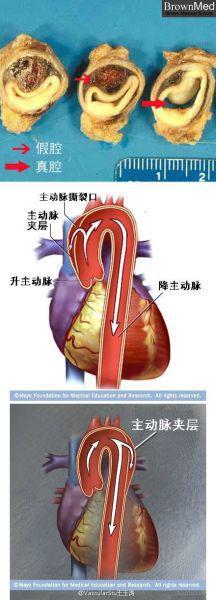 图为:主动脉夹层的病理图 浙江省人民医院供图