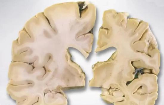 左邊這個是正常人的大腦切片,腦回(大腦上的褶皺)很飽滿。右邊是阿爾茨海默病患者的大腦切片,大腦明顯萎縮。