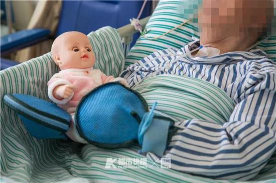 一位阿爾茨海默病患者抱著他喜歡的洋娃娃, 手上戴著防護手套防止拉扯身上的管子。 首席記者 陳中秋 攝
