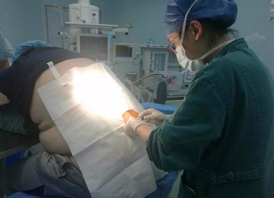 麻醉师用加长穿刺针才成功麻醉穿刺 以上图片由医院提供