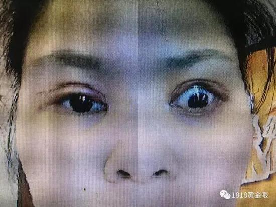 杭州一姑娘做到双眼皮手术 术后眼睛大得可怕