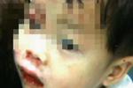 金华1路上窨井没有盖 男童骑扭扭车被卡受伤