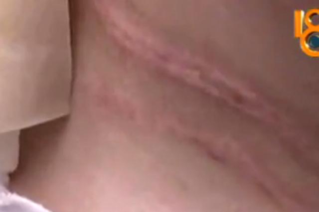 绍兴1女子足浴店拔火罐烧伤 工作人员说不怎么会
